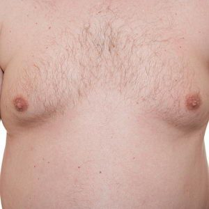 Gynecomastia - breast reduction for men