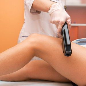 hair-removal-epilator